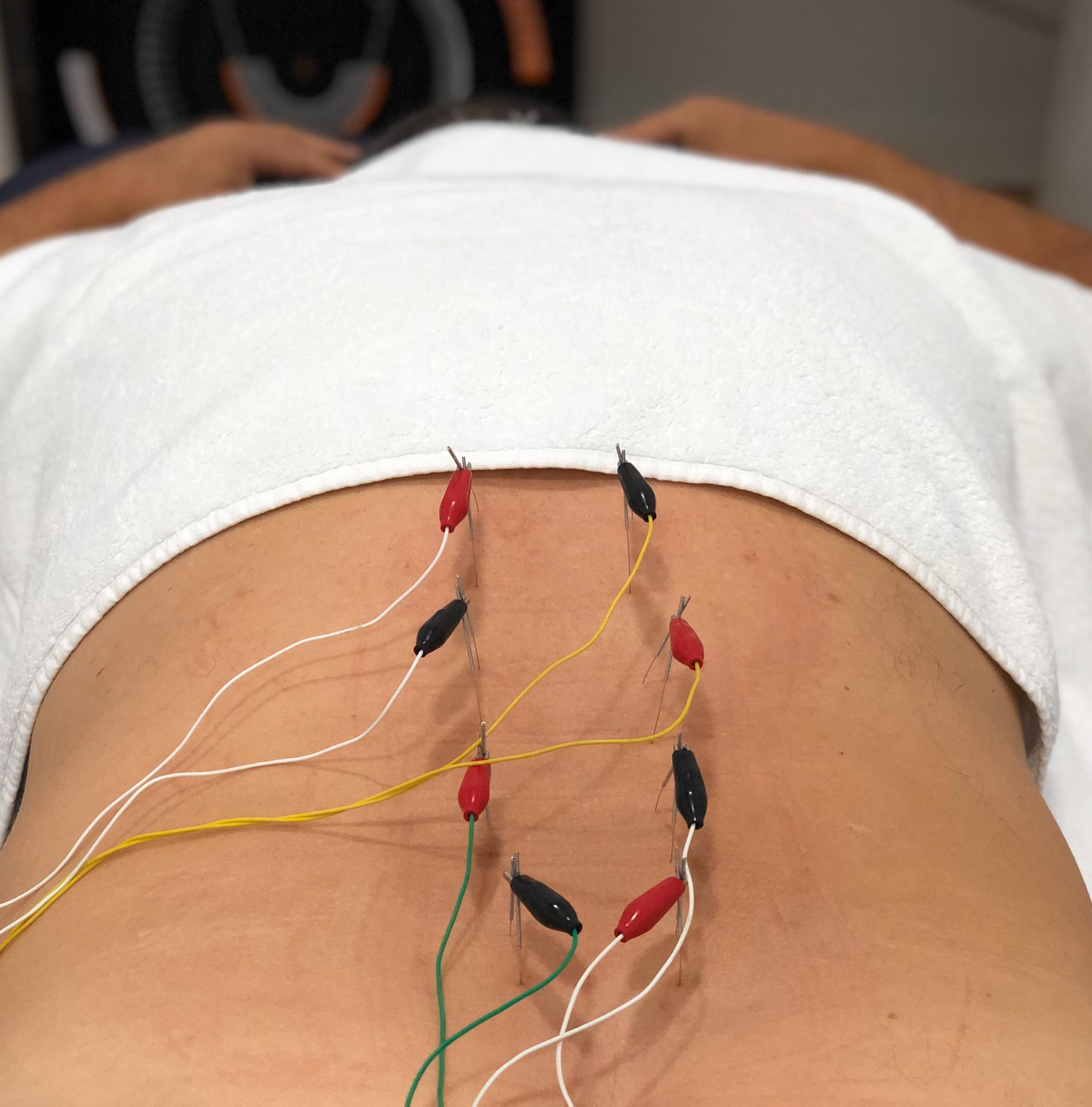 neuromodulacion-funcional-doctor-blas-ramon-martinez